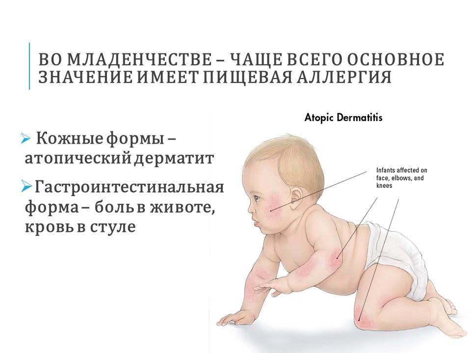 Атопический дерматит только красные щеки